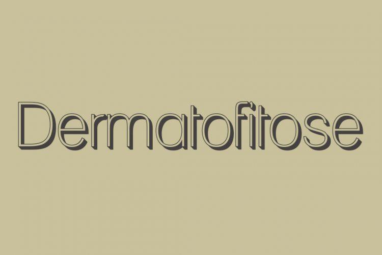 Doenças de Verão: Dermatofitose